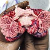 cerebellum.photo.by.123anatomy_human321